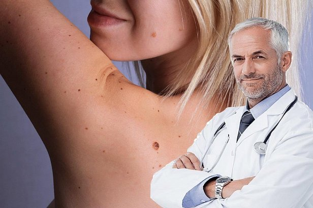 фото - врач онколог