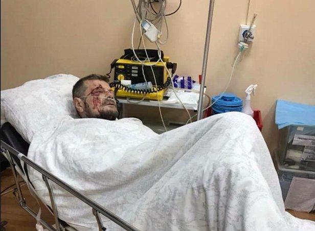 Мосийчук вспомнил момент взрыва: что произошло