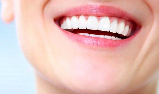 фото - отбеливания зубов