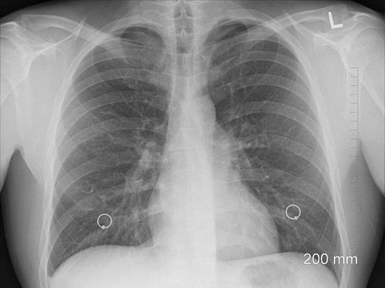 фото - пневмония