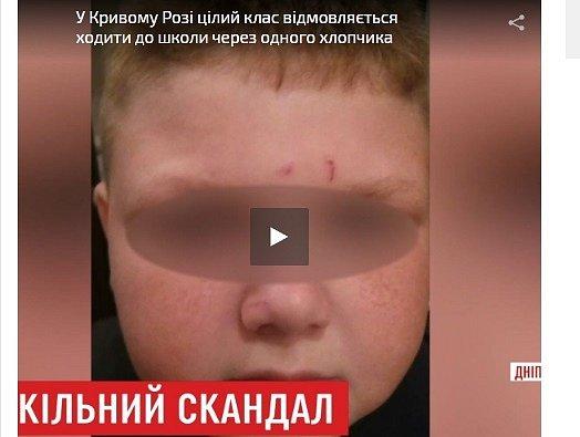Все в шоке: в Кривом Роге третьеклассник бьет и режет детей в школе (видео)