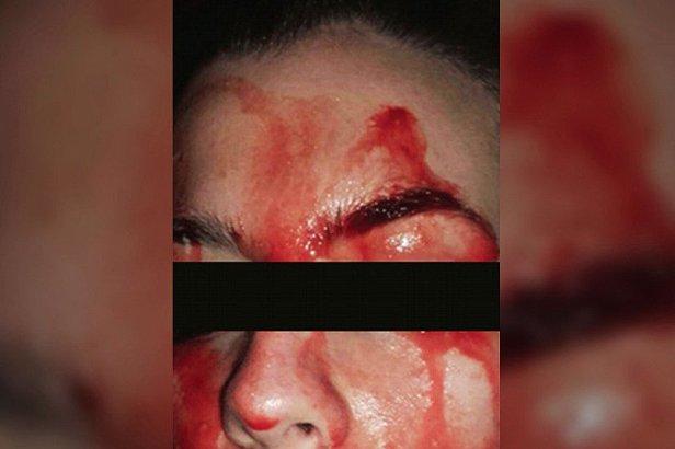 В Италии девушка потела кровью из-за редкой болезни