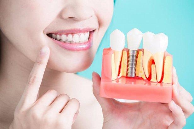Протезирование зубов в Киеве: что важно знать