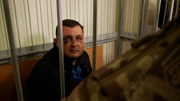В СБУ прокомментировали повреждения Шепелева