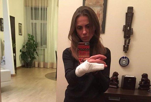 Полицейского, сломавшего женщине руку, от службы не отстранят, но могут направить к психологу